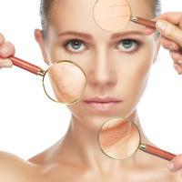 Huidverbetering-schoonheidsbehandelingen-leiderdorp-leiden-schoonheidsspecialiste