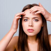 Acne behandeling - leiderdorp - leiden