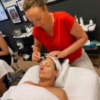 dermaroller-huidverbetering-leiderdorp-leiden